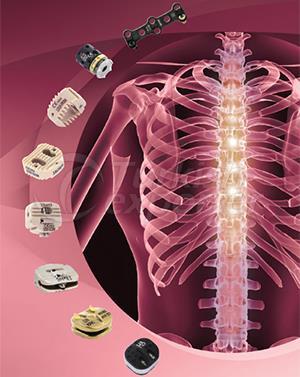 Artrofiks Cervical System